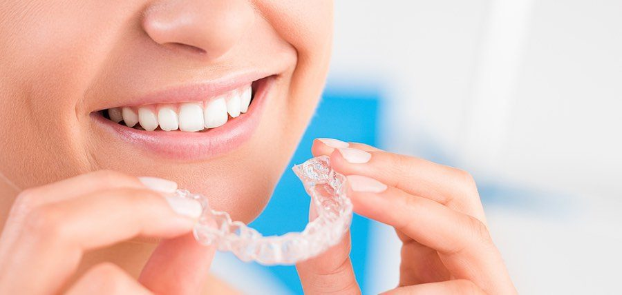 9 Facts About Teeth Whitening Products and Procedures