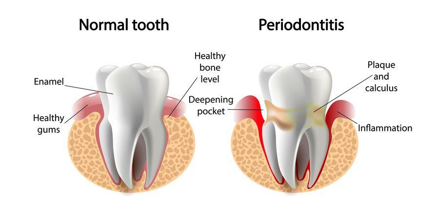 Prevention and Treatment of Periodontal Disease
