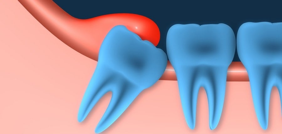 Do You Have an Infected Wisdom Tooth?