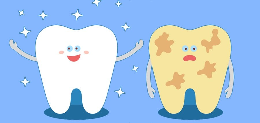 What Causes Discoloration of Teeth?